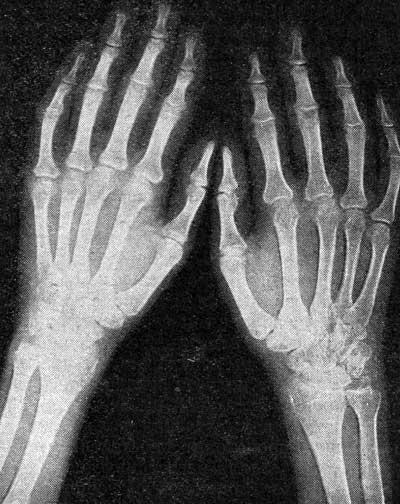 ...основных фаланг и головки II пястной кости правой кисти (II стадия по.