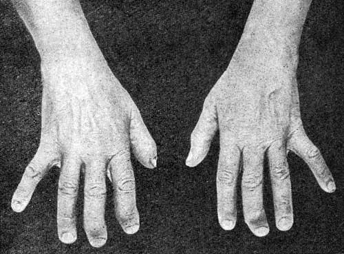 Остеоартроз дистальных межфаланговых суставов кистей отёкают ноги и болят суставы после родов