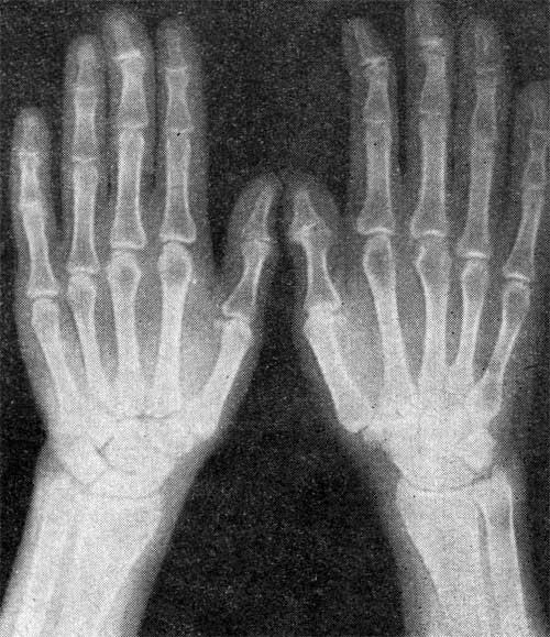 Субхондральный склероз межфаланговых суставов техника артродеза голеностопного сустава штифтом