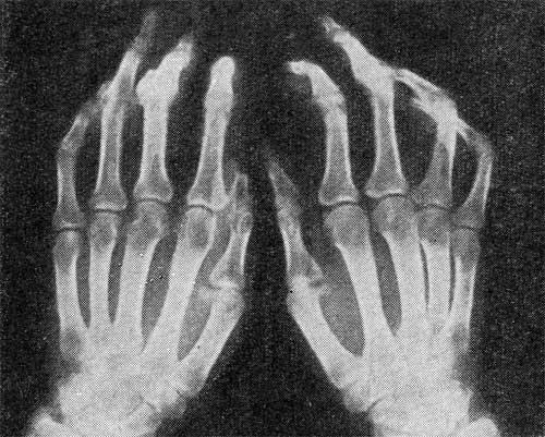 артрит левой кисти Артрит пальцев рук симптомы и лечение | Как лечить артрит.