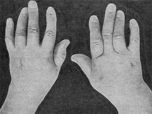 Поражение суставов кисти хруст в суставах по всему телу