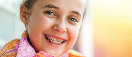 Брекет-система для детей: показания и надобность