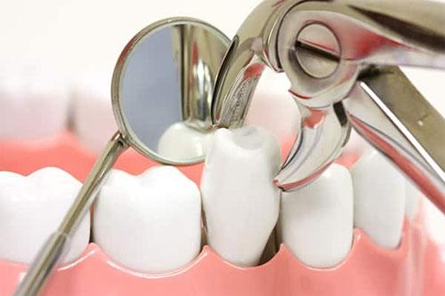 Удаление зуба: абсолютные показания